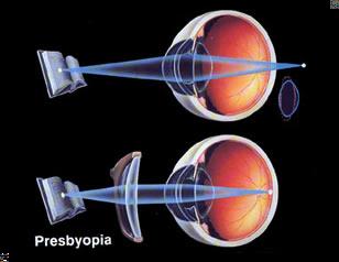 emPower Electronic Corrective Eyeglasses to Replace Progressive
